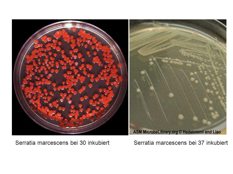 Serratia marcescens bei 30 inkubiertSerratia marcescens bei 37 inkubiert