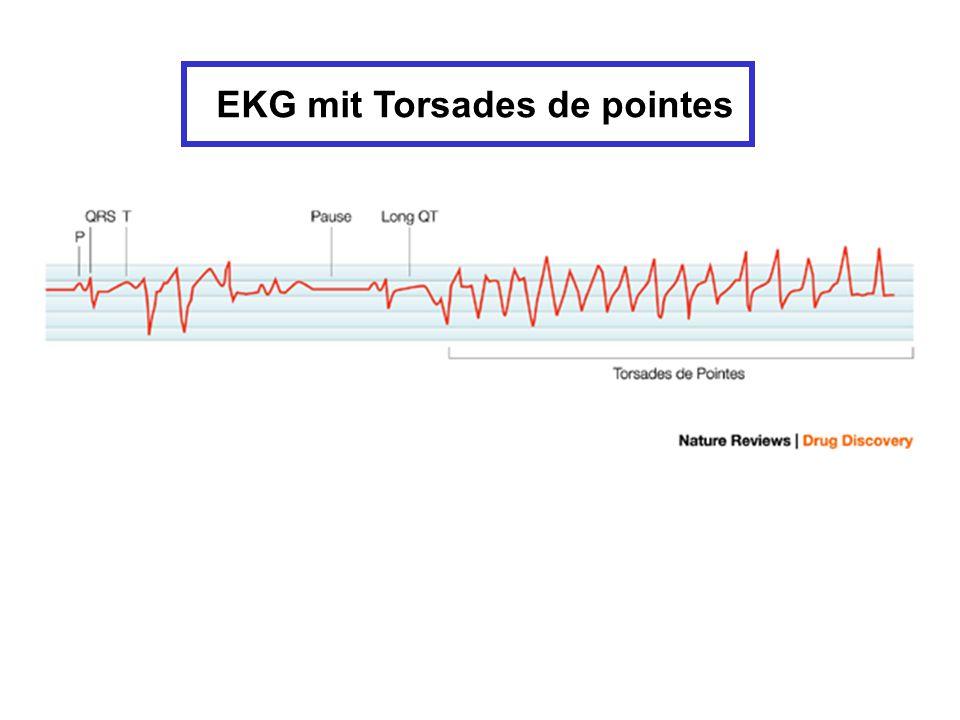 EKG mit Torsades de pointes