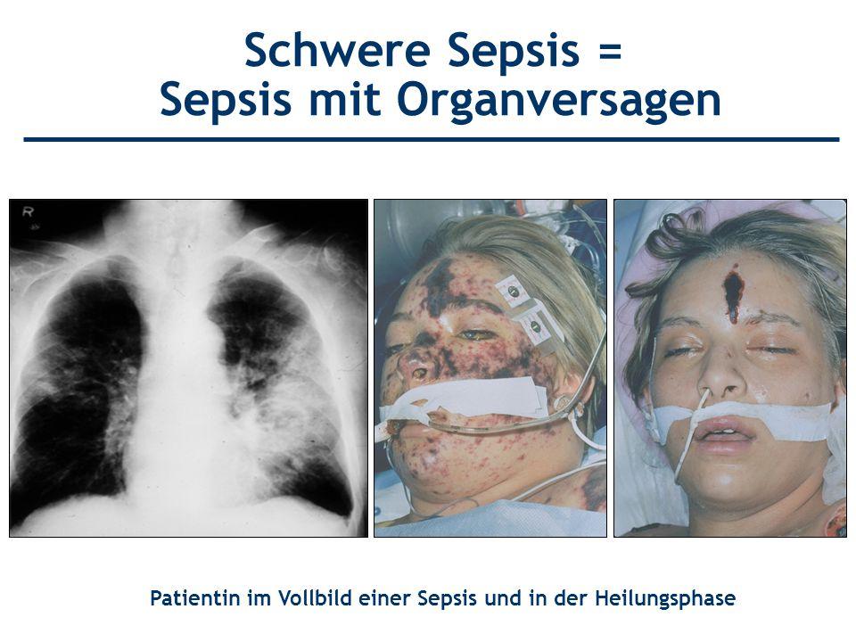 Schwere Sepsis = Sepsis mit Organversagen Patientin im Vollbild einer Sepsis und in der Heilungsphase