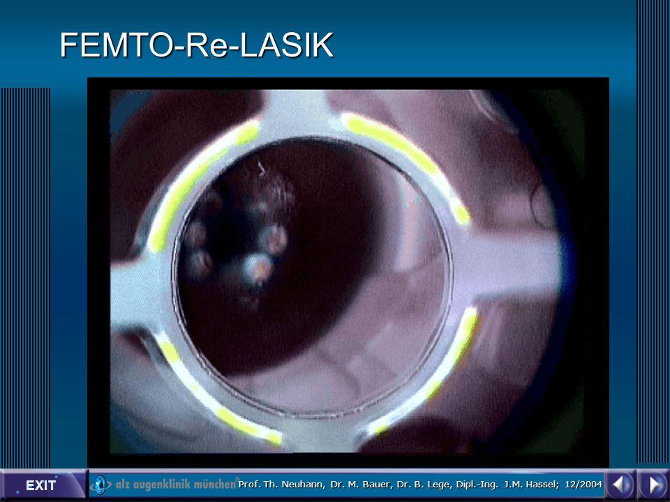 EXIT Prof. Th. Neuhann, Dr. M. Bauer, Dr. B. Lege, Dipl.-Ing. J.M. Hassel; 12/2004 FEMTO-Re-LASIK