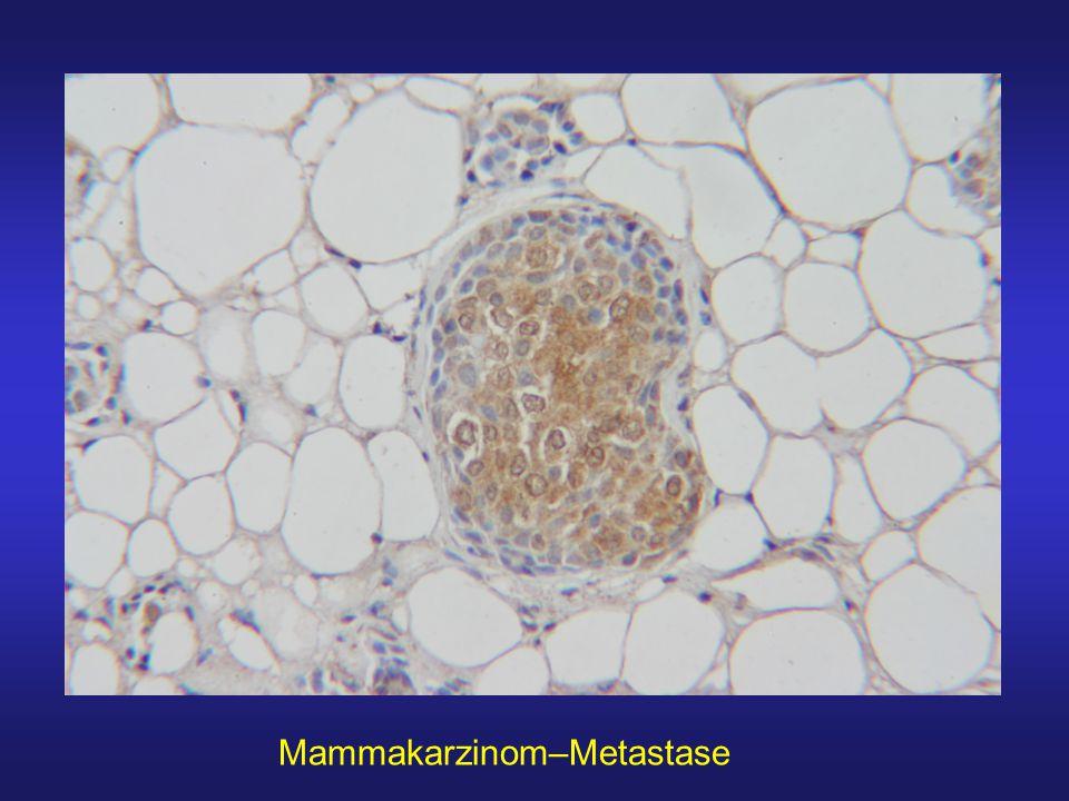 Mammakarzinom–Metastase