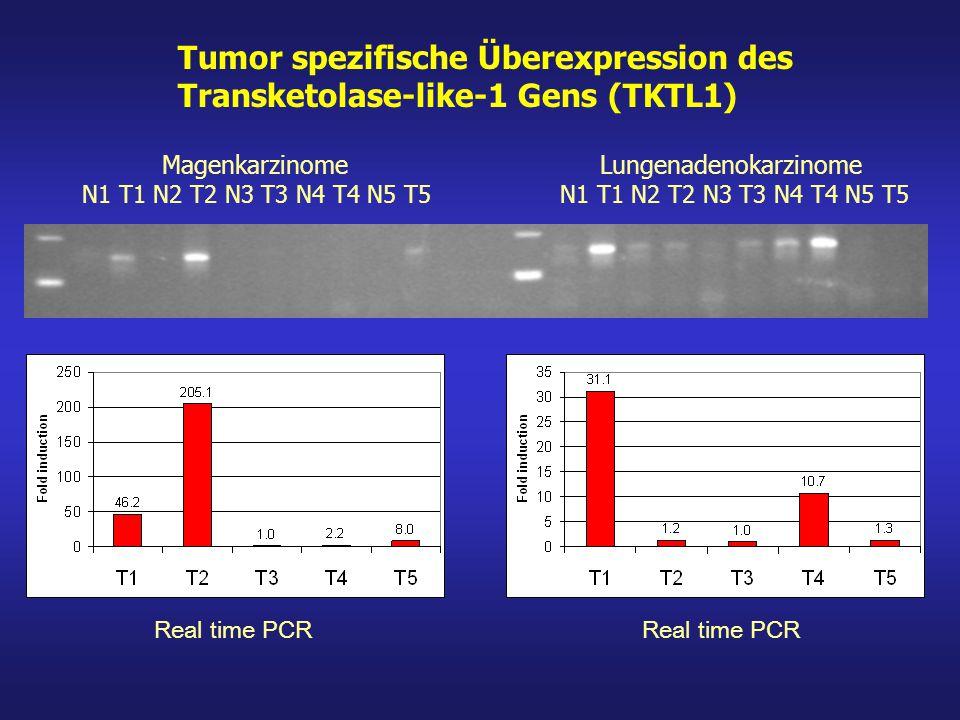 TKTL1-positiver Tumor Therapeutische Optionen: Hemmung des TKTL1-Enzyms durch ein Medikament (ist in der Entwicklung) Hemmung des TKTL1-Stoffwechsels durch TKTL1-Ernährungstherapie