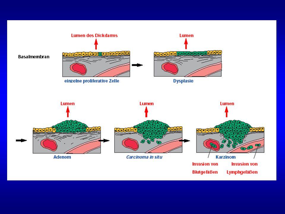 Voraussetzung für eine Metastasierung: Auflösung der umgebenden Matrix Konsequenz: Tumorzellen können sich ausbreiten und Metastasen bilden