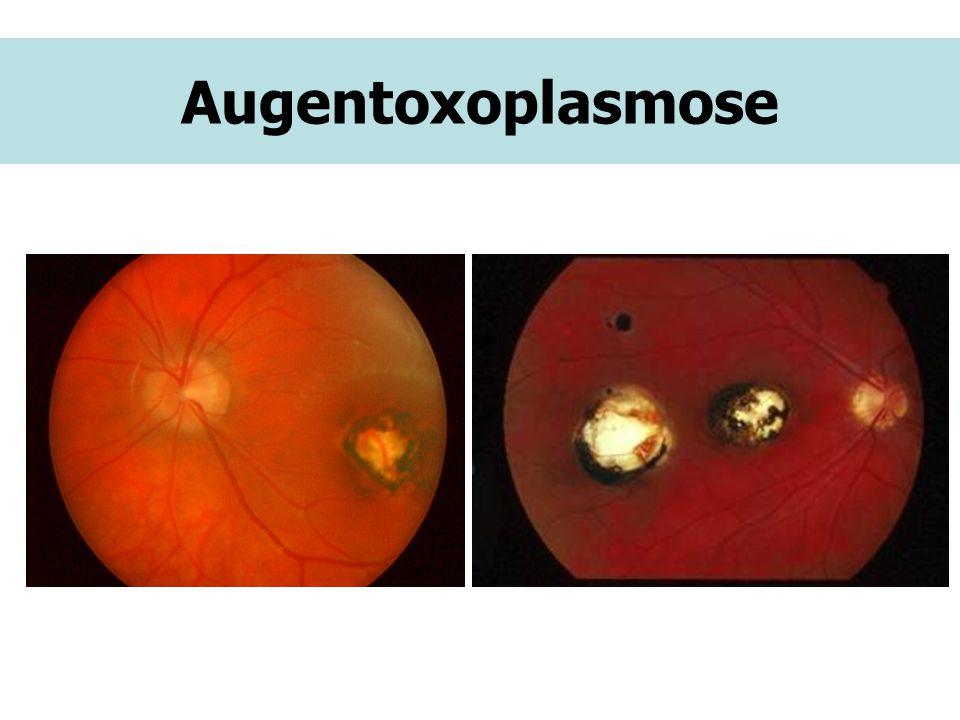 Augentoxoplasmose