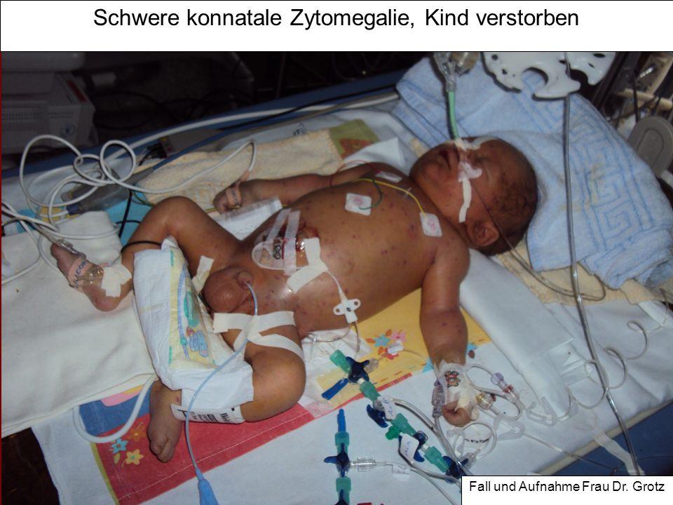 Virusinfektionen in der Schwangerschaft im Überblick Infektion/Erreger Risiko KindMaßnahmen Hämatogen Risiko in SSW Röteln bis 16.