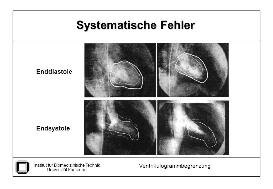 Institut für Biomedizinische Technik Universität Karlsruhe Ventrikulogrammbegrenzung Systematische Fehler Enddiastole Endsystole