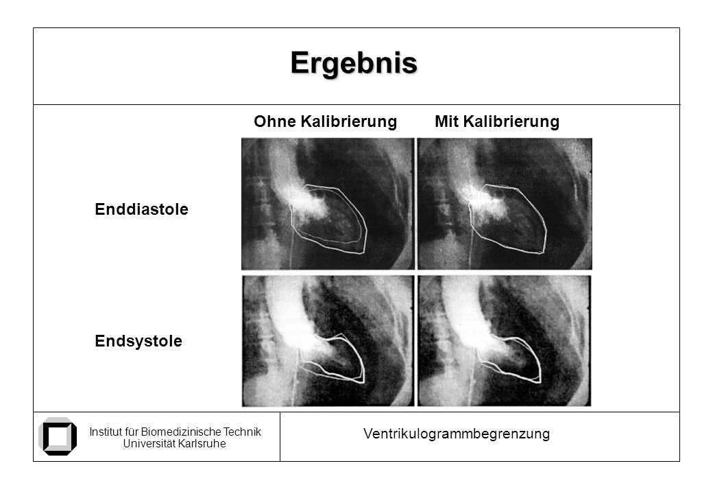 Institut für Biomedizinische Technik Universität Karlsruhe Ventrikulogrammbegrenzung Ergebnis Enddiastole Endsystole Ohne KalibrierungMit Kalibrierung