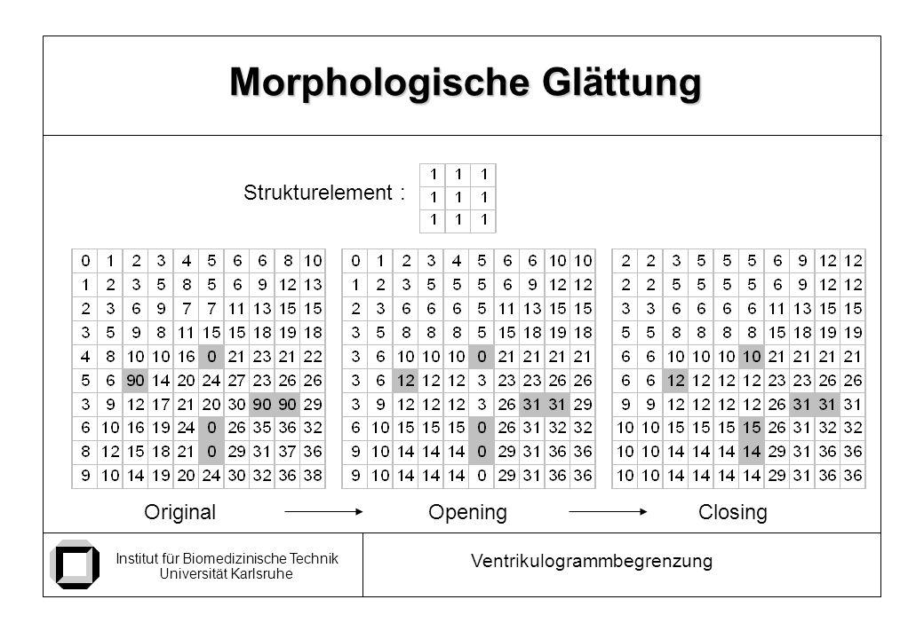 Institut für Biomedizinische Technik Universität Karlsruhe Ventrikulogrammbegrenzung Morphologische Glättung OpeningClosingOriginal Strukturelement :