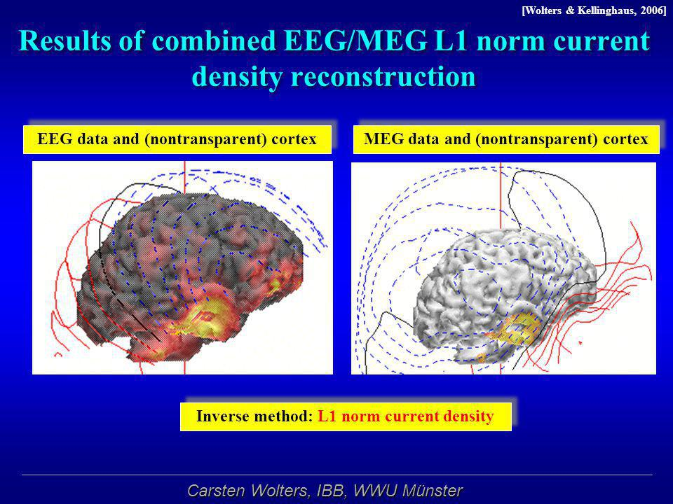 Carsten Wolters, IBB, WWU Münster Results of combined EEG/MEG L1 norm current density reconstruction Inverse method: L1 norm current density [Wolters