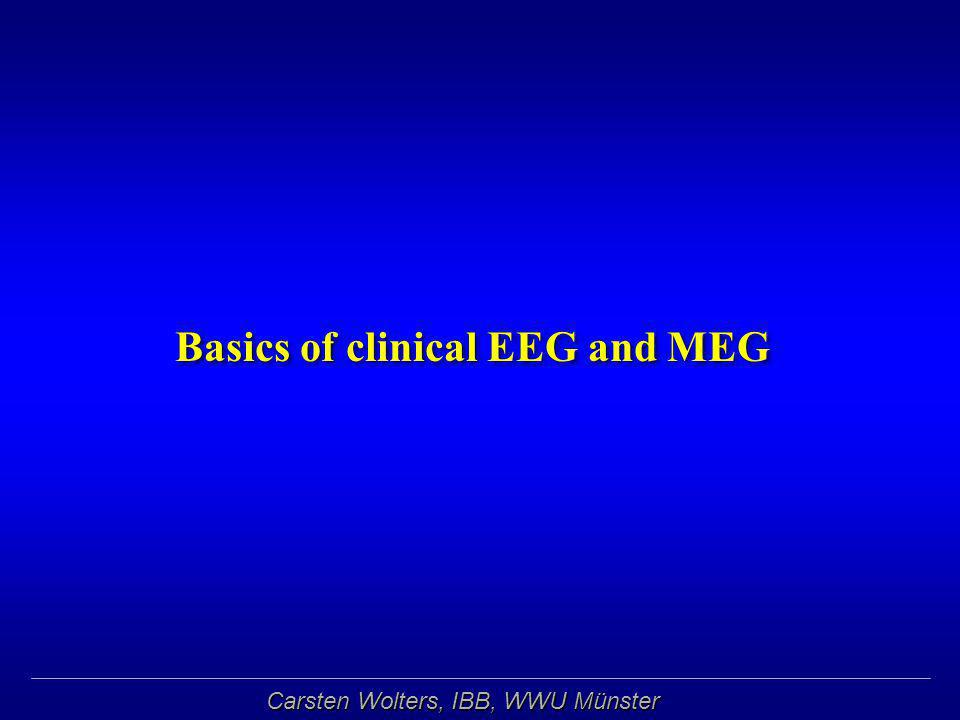 Carsten Wolters, IBB, WWU Münster Electro- (EEG) and Magneto-encephalography (MEG) 275 channel axial gradiometer whole-cortex MEG128 channel EEG 275 channel axial gradiometer whole-cortex MEG128 channel EEG