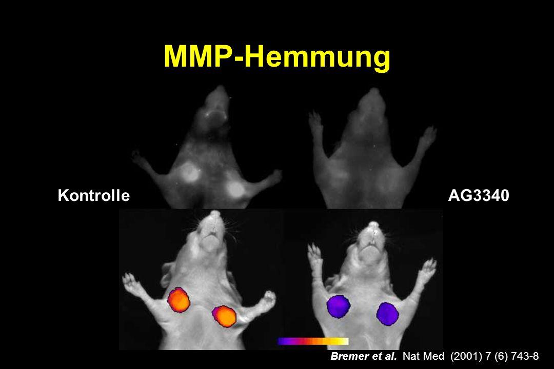 MMP-Hemmung KontrolleAG3340 Bremer et al. Nat Med (2001) 7 (6) 743-8