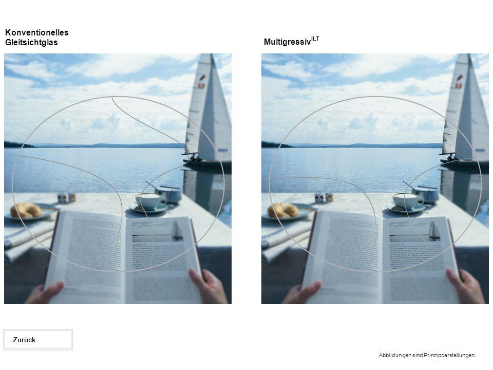 Abbildungen sind Prinzipdarstellungen. Zurück Multigressiv ILT Konventionelles Gleitsichtglas