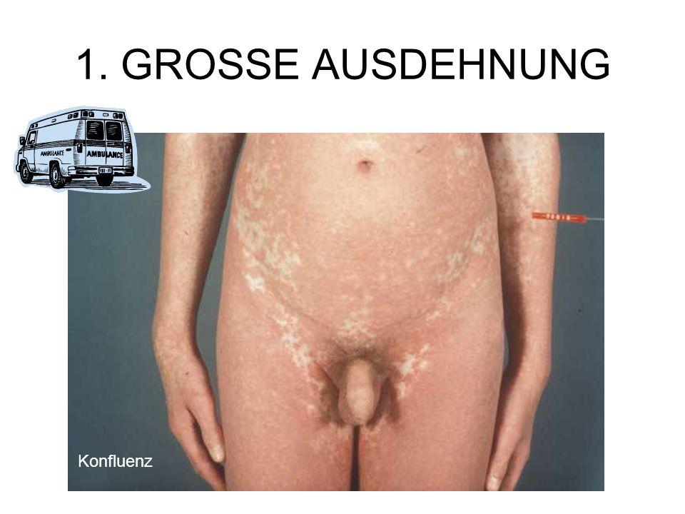 1. GROSSE AUSDEHNUNG Konfluenz