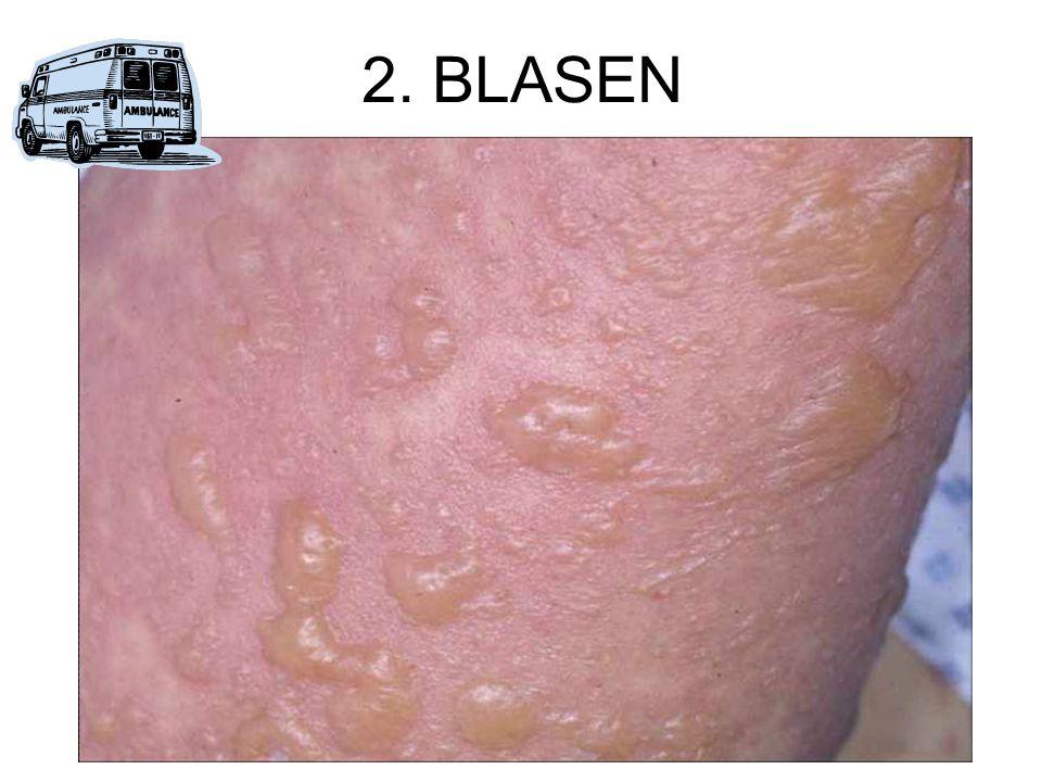 2. BLASEN