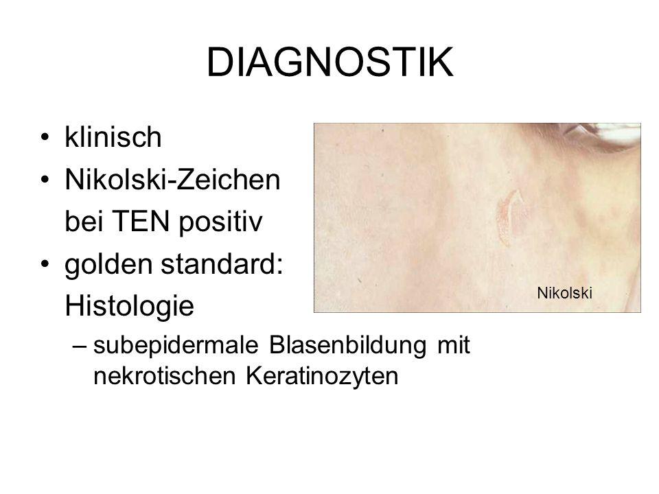 DIAGNOSTIK klinisch Nikolski-Zeichen bei TEN positiv golden standard: Histologie –subepidermale Blasenbildung mit nekrotischen Keratinozyten Nikolski