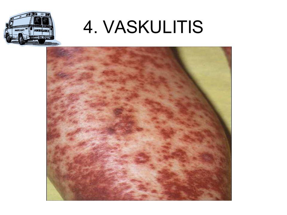 4. VASKULITIS