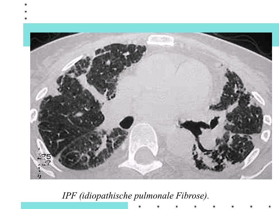 IPF (idiopathische pulmonale Fibrose).