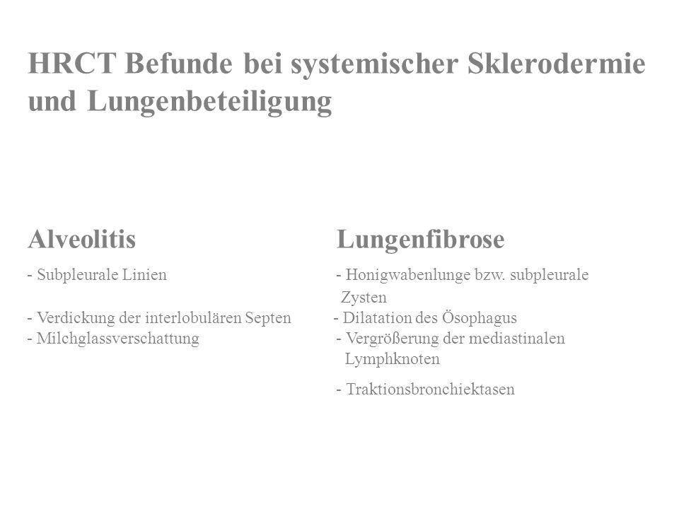 HRCT Befunde bei systemischer Sklerodermie und Lungenbeteiligung AlveolitisLungenfibrose - Subpleurale Linien - Honigwabenlunge bzw. subpleurale Zyste