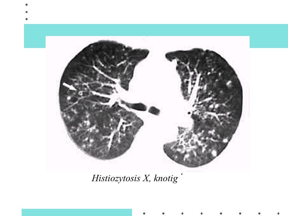 , Histiozytosis X, knotig