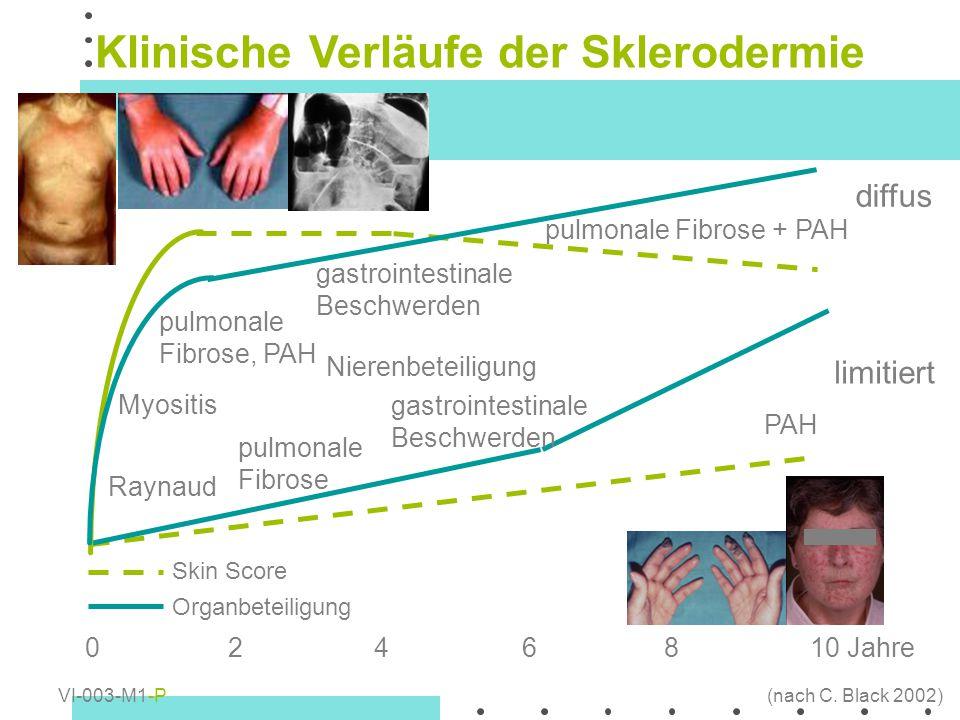 diffus limitiert 010 Jahre2468 Raynaud Nierenbeteiligung pulmonale Fibrose, PAH pulmonale Fibrose + PAH Myositis gastrointestinale Beschwerden pulmona