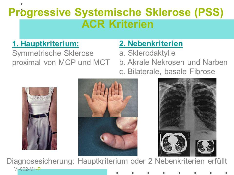 Progressive Systemische Sklerose (PSS) ACR Kriterien 1. Hauptkriterium: Symmetrische Sklerose proximal von MCP und MCT 2. Nebenkriterien a. Sklerodakt