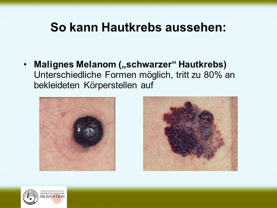 So kann Hautkrebs aussehen: Malignes Melanom (schwarzer Hautkrebs) Unterschiedliche Formen möglich, tritt zu 80% an bekleideten Körperstellen auf