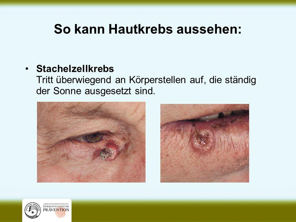 So kann Hautkrebs aussehen: Stachelzellkrebs Tritt überwiegend an Körperstellen auf, die ständig der Sonne ausgesetzt sind.