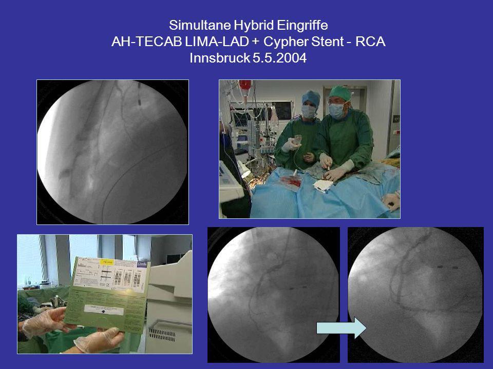 Simultane Hybrid Eingriffe AH-TECAB LIMA-LAD + Cypher Stent - RCA Innsbruck 5.5.2004
