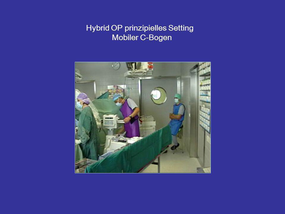 Hybrid OP prinzipielles Setting Mobiler C-Bogen