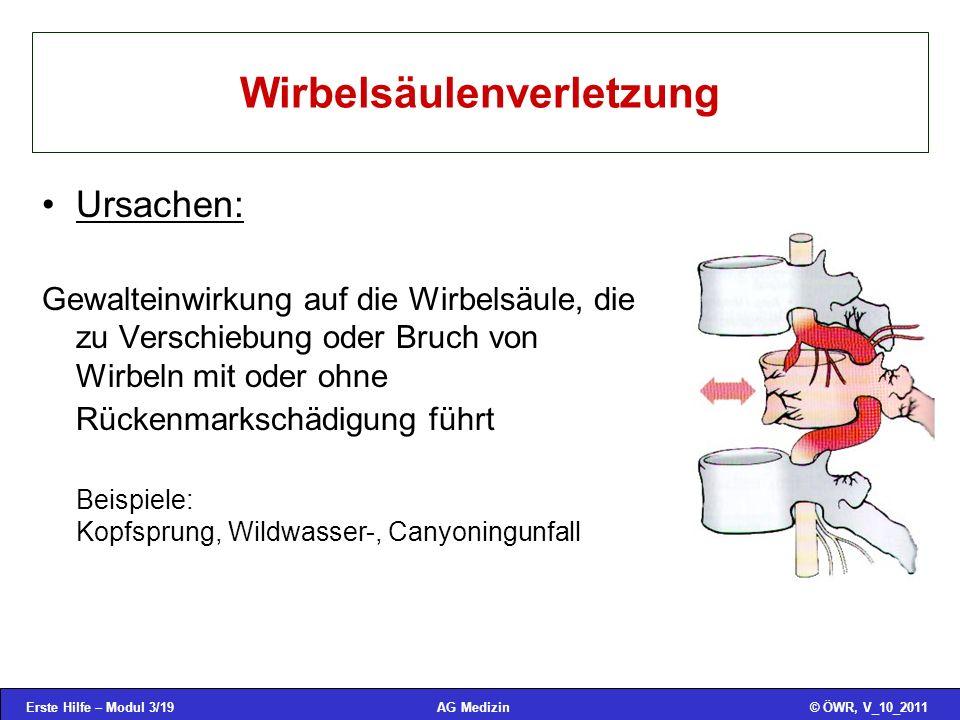 Erste Hilfe – Modul 3/19© ÖWR, V_10_2011AG Medizin Wirbelsäulenverletzung Ursachen: Gewalteinwirkung auf die Wirbelsäule, die zu Verschiebung oder Bru