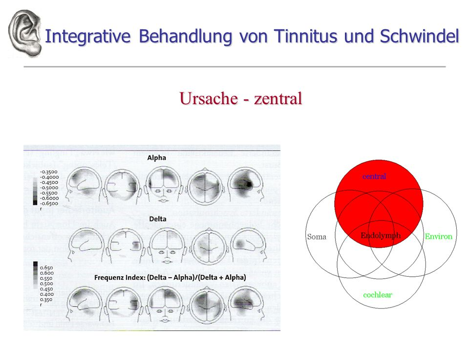 Integrative Behandlung von Tinnitus und Schwindel Ursache - zentral Neurophysiological model P.