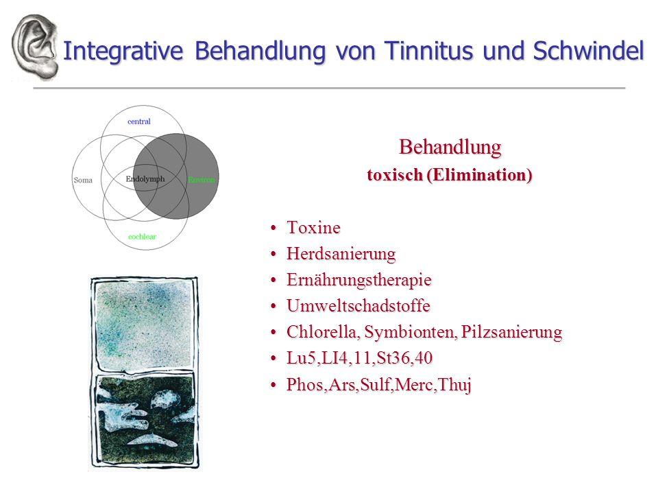 Integrative Behandlung von Tinnitus und Schwindel Behandlung toxisch (Elimination) ToxineToxine HerdsanierungHerdsanierung ErnährungstherapieErnährung