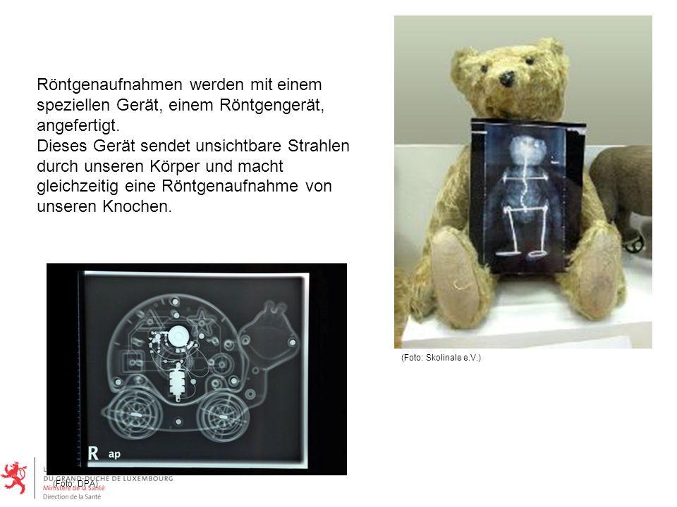 Röntgenaufnahmen werden mit einem speziellen Gerät, einem Röntgengerät, angefertigt. Dieses Gerät sendet unsichtbare Strahlen durch unseren Körper und