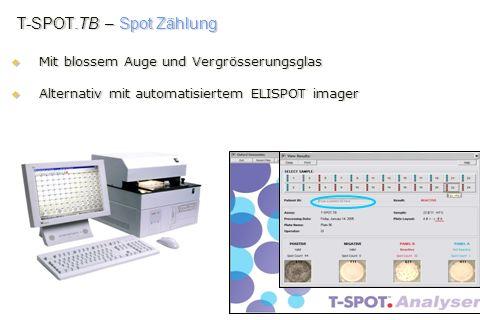 T-SPOT.TB – Spot Zählung Mit blossem Auge und Vergrösserungsglas Mit blossem Auge und Vergrösserungsglas Alternativ mit automatisiertem ELISPOT imager