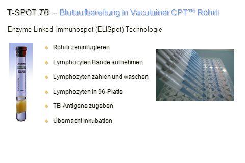T-SPOT.TB – Blutaufbereitung in Vacutainer CPT Röhrli Röhrli zentrifugieren Röhrli zentrifugieren Lymphocyten Bande aufnehmen Lymphocyten Bande aufneh
