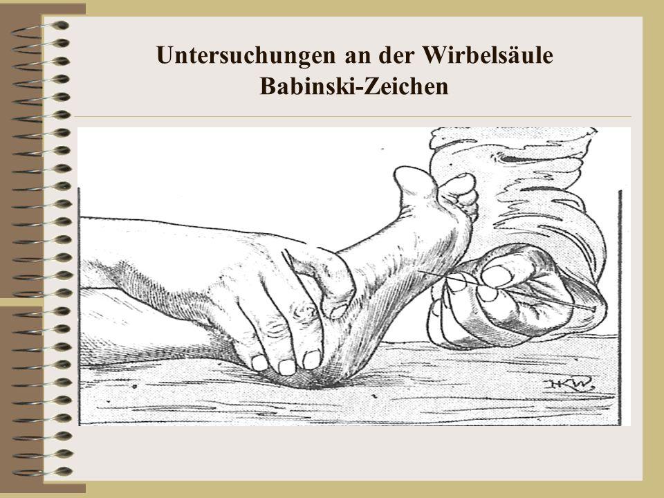 Untersuchungen an der Wirbelsäule Babinski-Zeichen