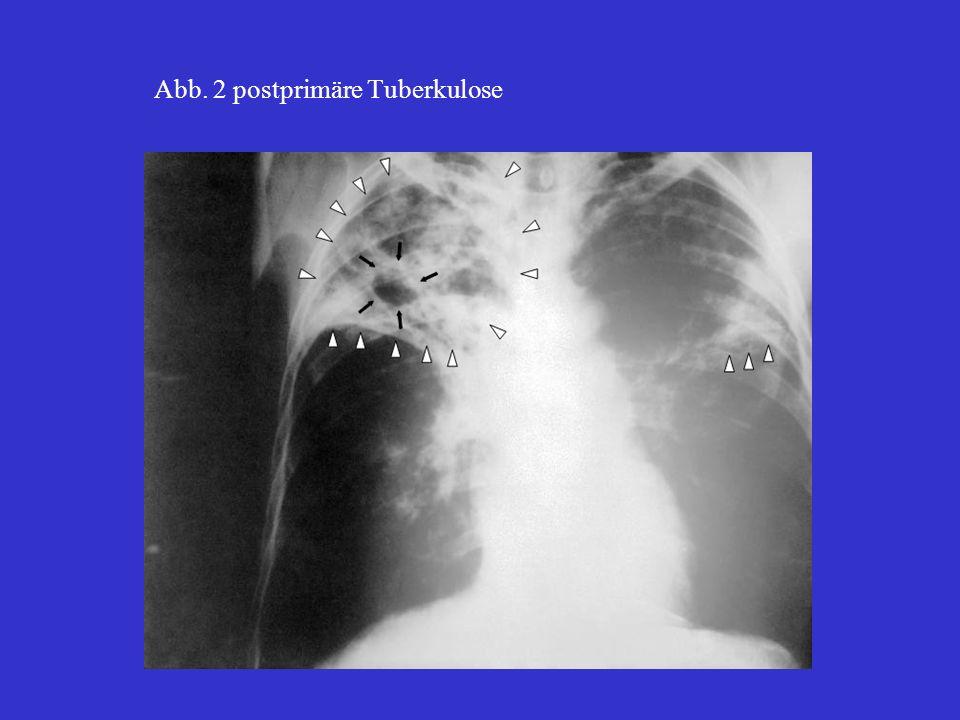 MOTT: Mykobacteria other than Tbc DOT: direktly observed therapy DST: drug sensibility test offen: Anschluß ans Bronchialsystem, d.h.