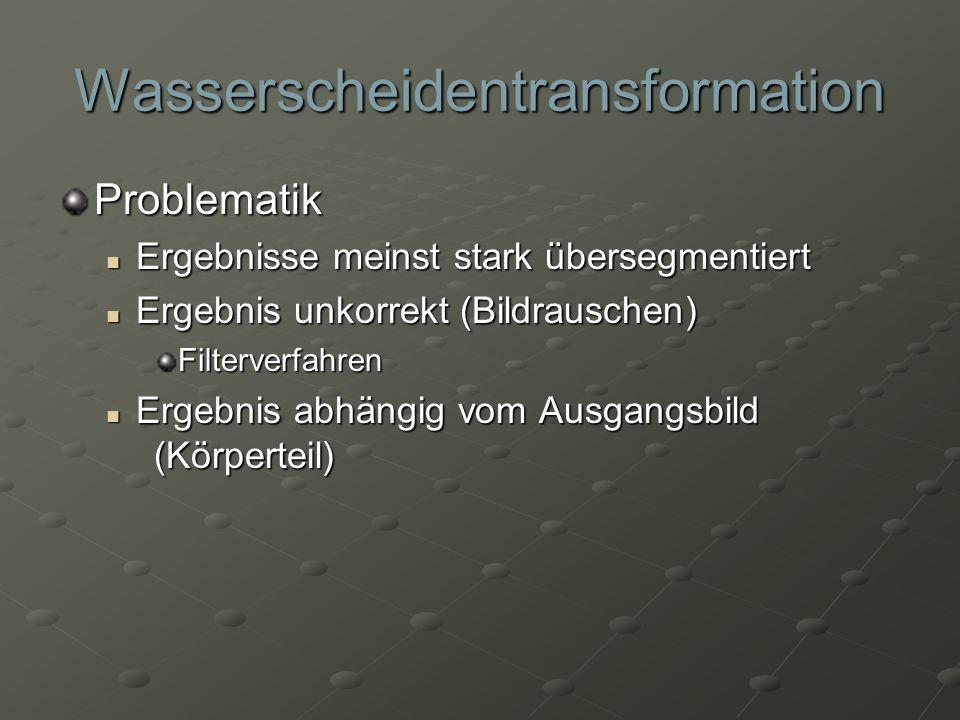 Wasserscheidentransformation Problematik Ergebnisse meinst stark übersegmentiert Ergebnisse meinst stark übersegmentiert Ergebnis unkorrekt (Bildrausc