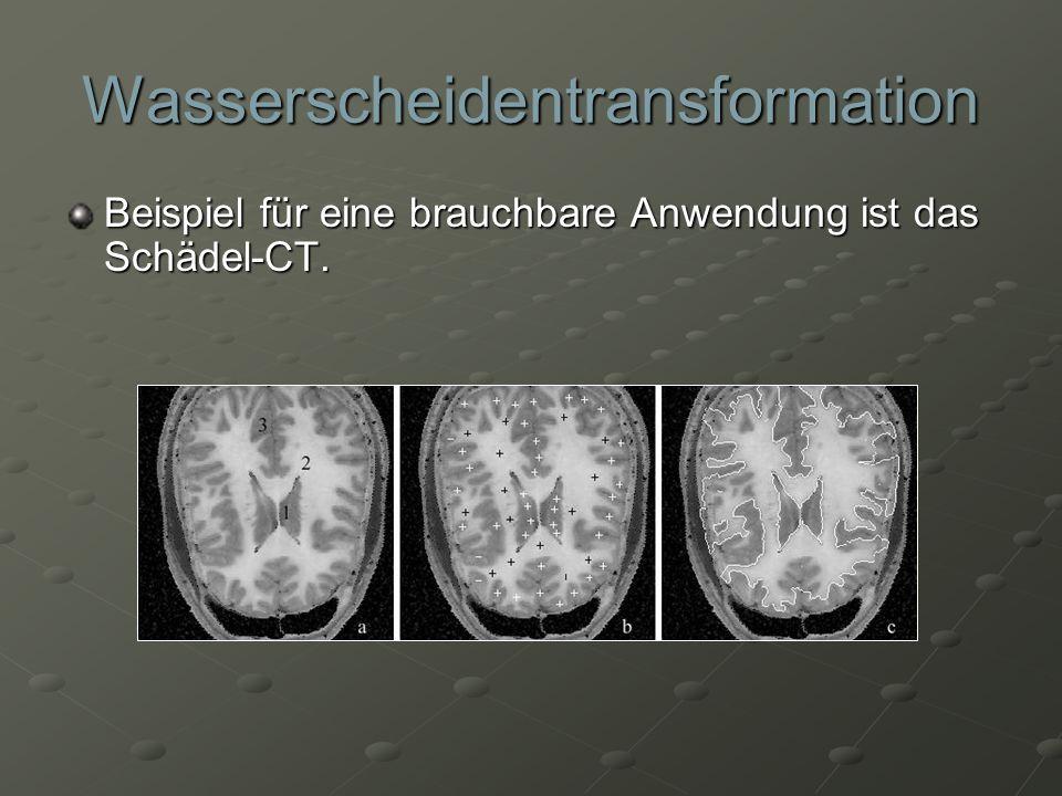 Wasserscheidentransformation Beispiel für eine brauchbare Anwendung ist das Schädel-CT.