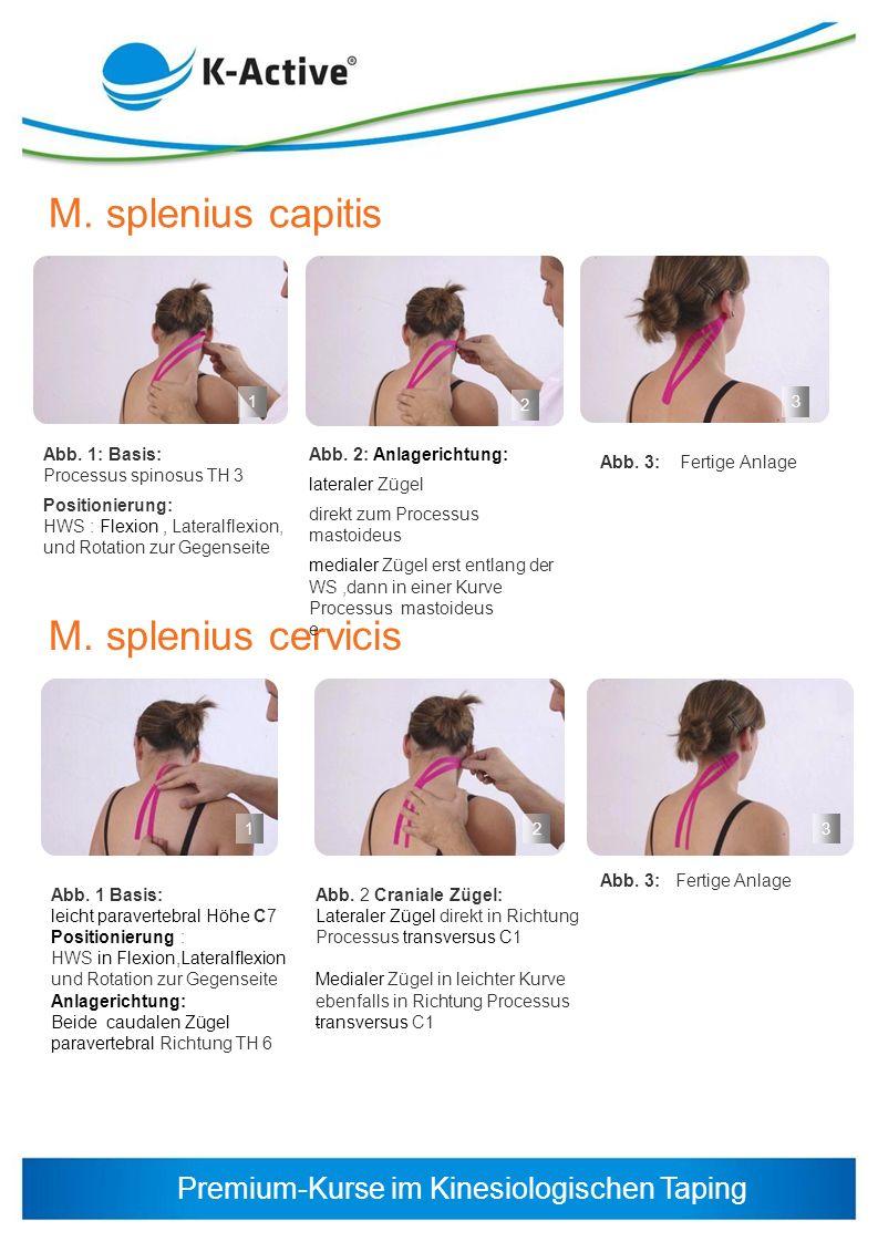 Premium-Kurse im Kinesiologischen Taping M. splenius capitis M. splenius cervicis Abb. 1: Basis: Processus spinosus TH 3 Positionierung: HWS : Flexion