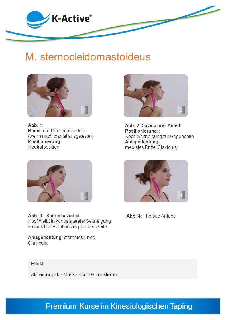 Premium-Kurse im Kinesiologischen Taping M. sternocleidomastoideus Abb. 1: Basis: am Proc. mastoideus (wenn nach cranial ausgetestet ) Positionierung: