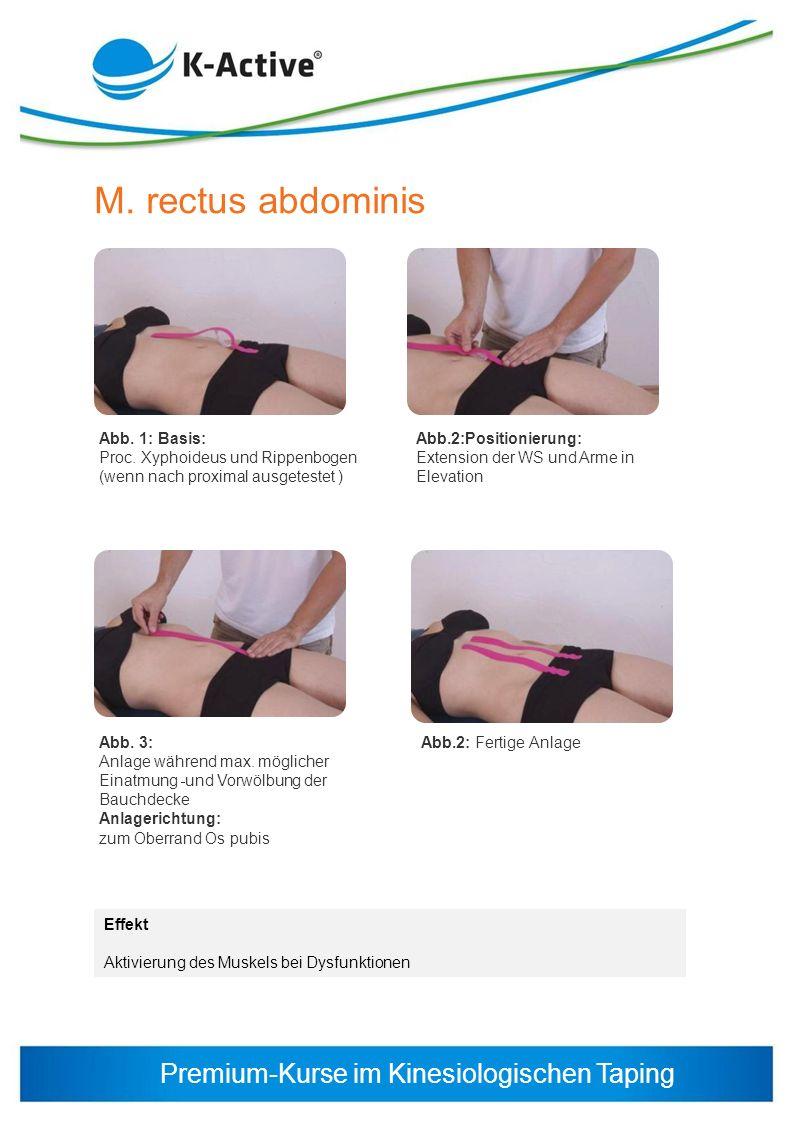 Premium-Kurse im Kinesiologischen Taping M. rectus abdominis Abb. 1: Basis: Proc. Xyphoideus und Rippenbogen (wenn nach proximal ausgetestet ) Abb. 3: