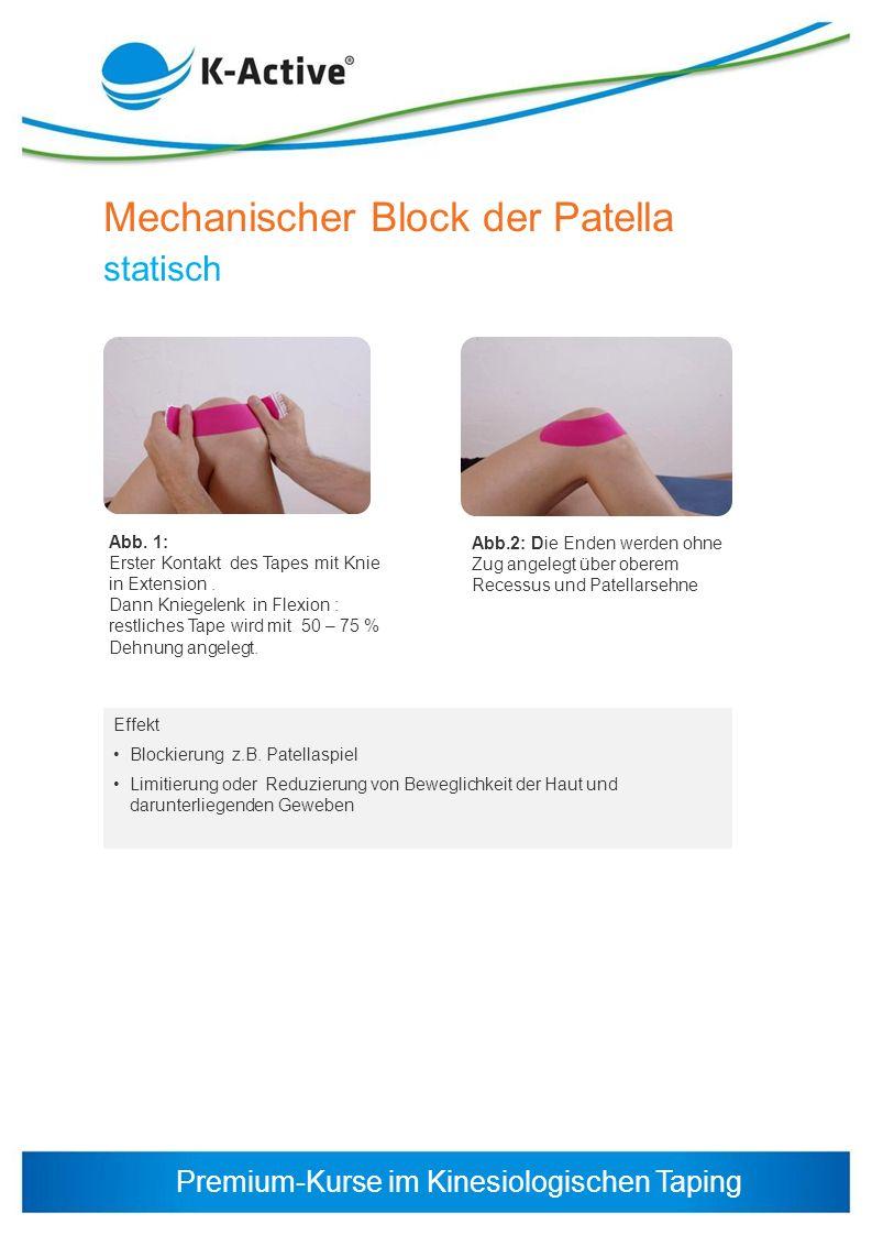 Premium-Kurse im Kinesiologischen Taping Mechanischer Block der Patella statisch Effekt Blockierung z.B. Patellaspiel Limitierung oder Reduzierung von
