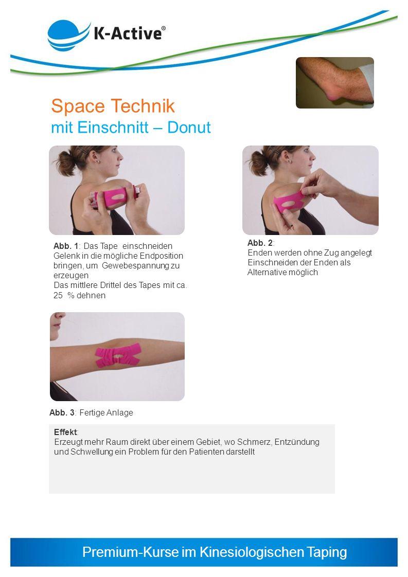 Premium-Kurse im Kinesiologischen Taping Space Technik mit Einschnitt – Donut Effekt: Erzeugt mehr Raum direkt über einem Gebiet, wo Schmerz, Entzündu