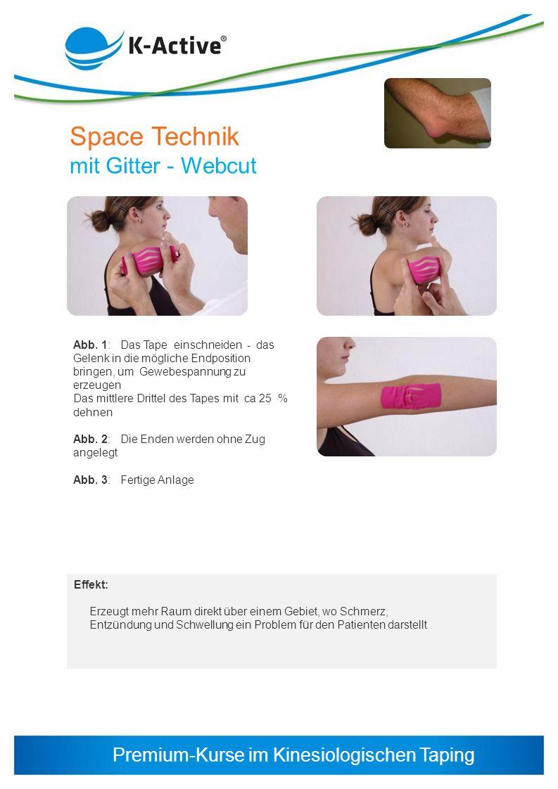 Premium-Kurse im Kinesiologischen Taping Space Technik mit Gitter - Webcut Abb. 1: Das Tape einschneiden - das Gelenk in die mögliche Endposition brin