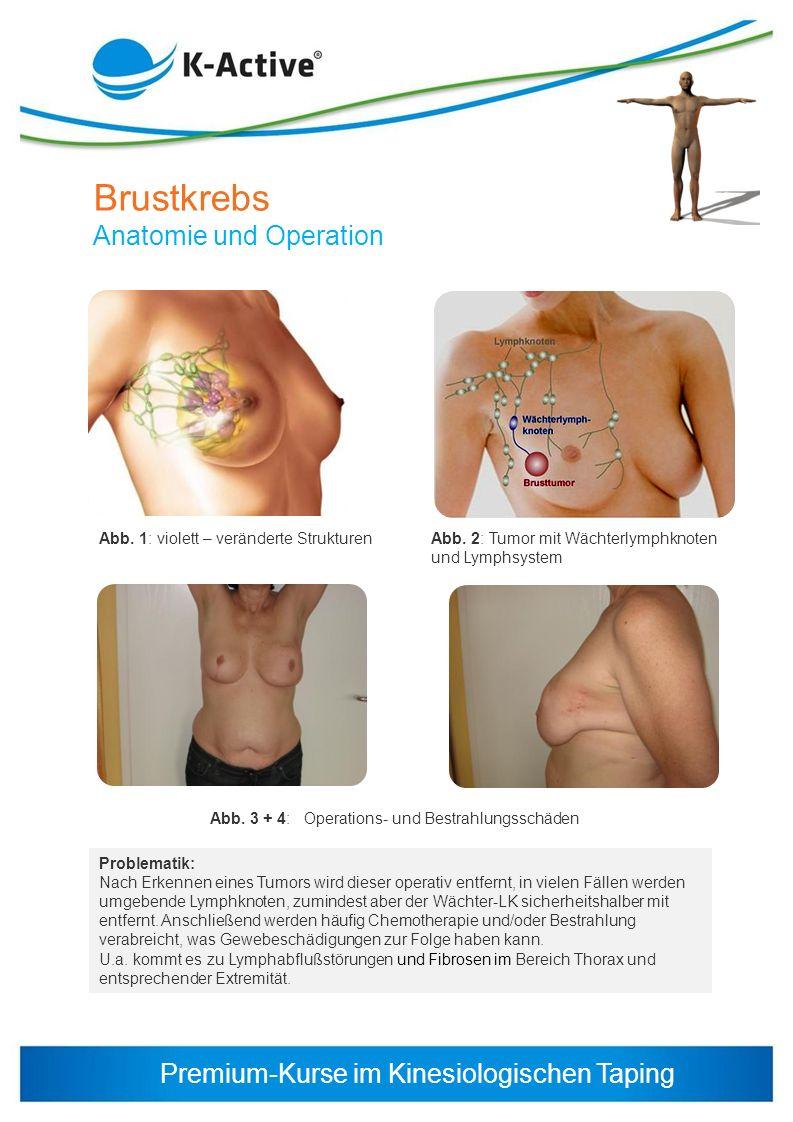 Premium-Kurse im Kinesiologischen Taping Brustkrebs Anatomie und Operation Abb. 1: violett – veränderte Strukturen Problematik: Nach Erkennen eines Tu
