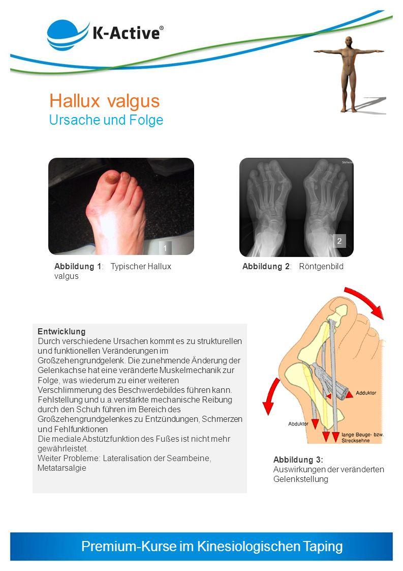 Premium-Kurse im Kinesiologischen Taping 1 2 Abbildung 1: Typischer Hallux valgus Entwicklung Durch verschiedene Ursachen kommt es zu strukturellen un
