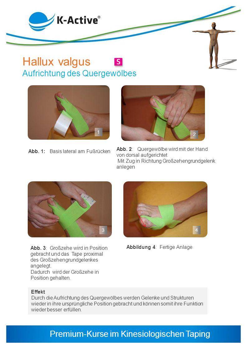 Premium-Kurse im Kinesiologischen Taping 1 2 3 Hallux valgus Aufrichtung des Quergewölbes Abb. 1: Basis lateral am Fußrücken Effekt Durch die Aufricht