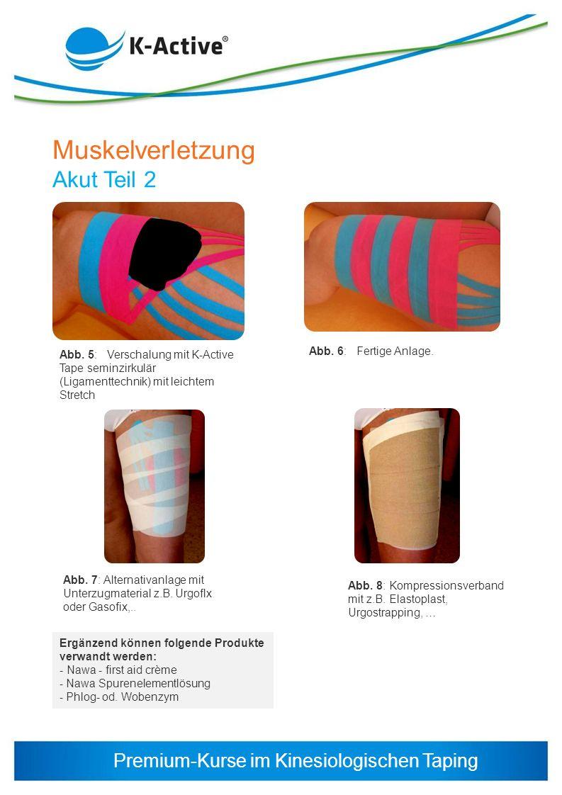 Premium-Kurse im Kinesiologischen Taping Muskelverletzung Akut Teil 2 Ergänzend können folgende Produkte verwandt werden: - Nawa - first aid crème - N