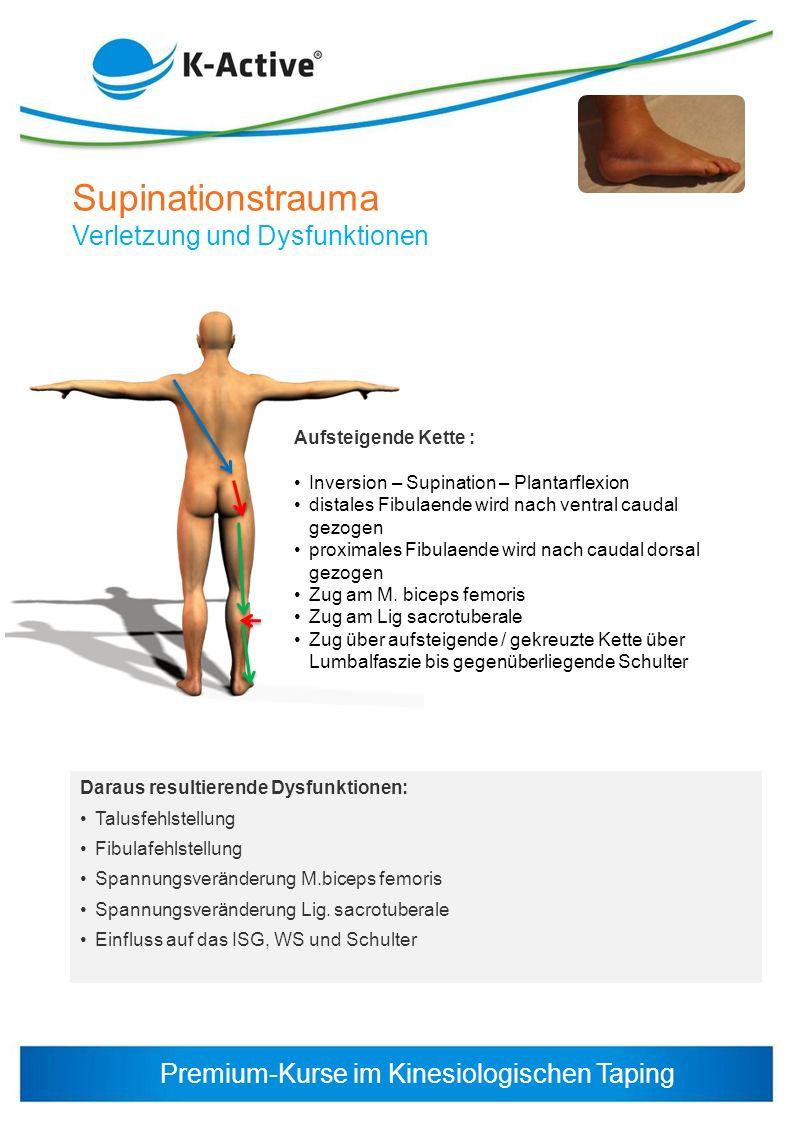 Premium-Kurse im Kinesiologischen Taping Supinationstrauma Verletzung und Dysfunktionen Aufsteigende Kette : Inversion – Supination – Plantarflexion d